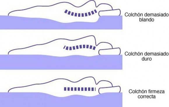 El colchón puede ser el causante del dolor de espalda